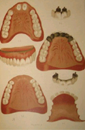 Crown, Bar, And Bridge-Work; New Methods of Permanently Adjusting Artifical Teeth without Plates by Isidore Clifford