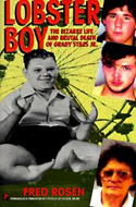 Lobster Boy: The Bizarre Life and Brutal Death of Grady Stiles Jr. by Fred Rosen